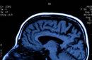 Découverte de gènes qui jouent sur le vieillissement cérébral